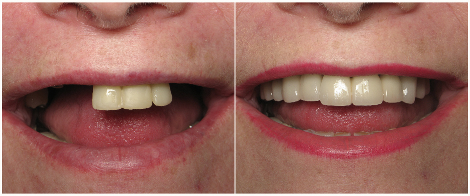 Advanced Laser Dentistry   General & Cosmetic Dentistry, Dental Fillings, Dental Implants, Dental Crowns, Whitening, Dentures, Ivisalign, Braces   Surprise, Phoenix, AZAdvanced Laser Dentistry   General & Cosmetic Dentistry, Dental Fillings, Dental Implants, Dental Crowns, Whitening, Dentures, Ivisalign, Braces   Surprise, Phoenix, AZ