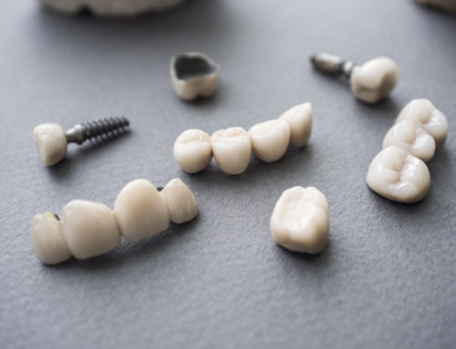 When Dental Crowns Are Necessary?