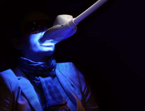 Does Laser Teeth Whitening Affect Fillings?