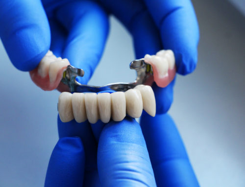 What To Do When Dental Bridge Falls Out?