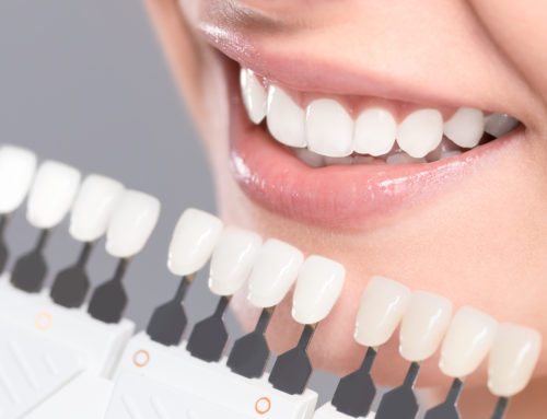 How Often Should You Whiten Your Teeth?