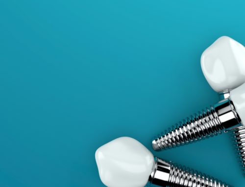 Longevity of Dental Implants