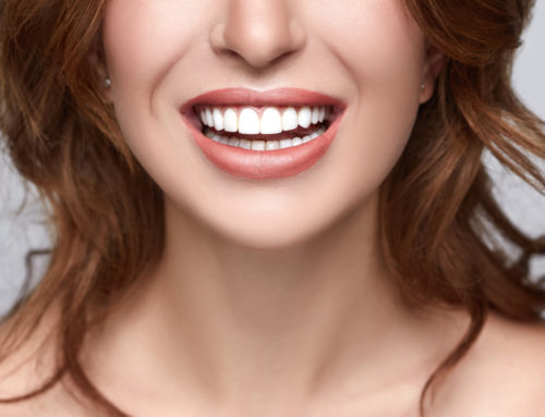 What Can You Do to Maintain Your Brighter Smile?